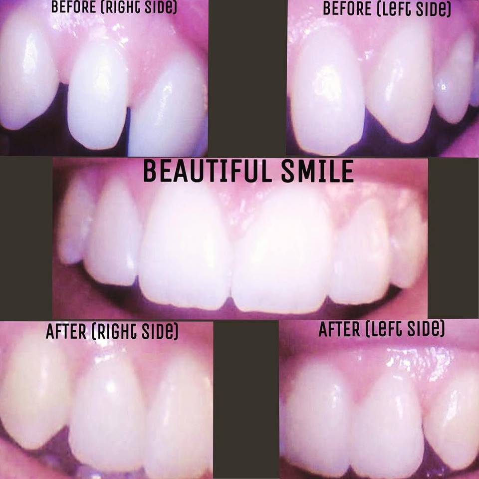 Cosmetic Dentistry-Before and After
