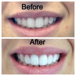 Woodbridge Dentist, Dentist in Woodbridge, Vaughan Dentist, Dentist in Vaughan, Componeers, Smile, Whiten, Insurance, Cool Dental, Before and After, Emergency, Emergency Dentist, Innovation Drive Dental, Spa-like atmosphere, Painless, Quick and Easy, Straight teeth, Change shape of teeth