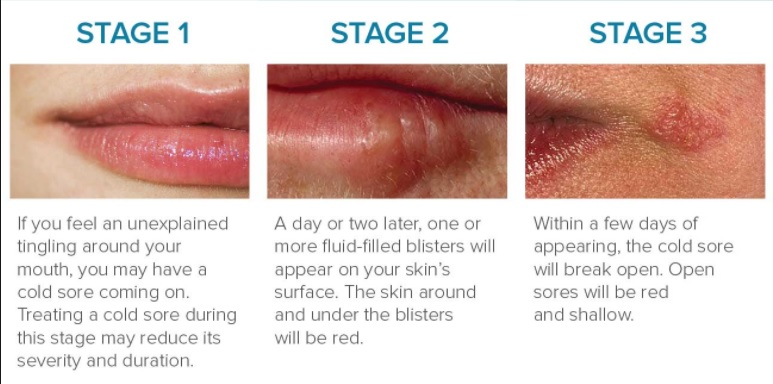Did You Know?-Cold Sores