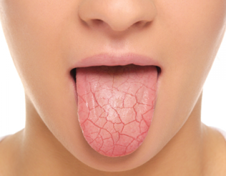 Dry Mouth (Xerostomia)